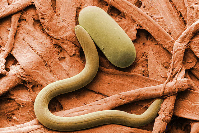 Experts: Watch For Soybean Cyst Nematode This Spring
